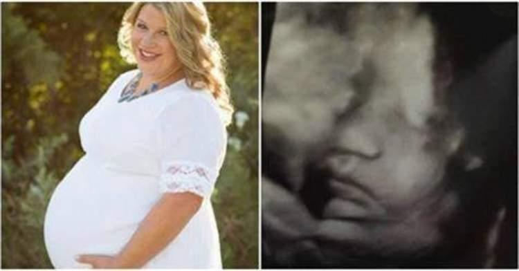 Дружина сказала чоловікові, що вагітна, на його похоронах. Вона ще не знала, які новини на неї чекають в лікарні 25 тижнів потому