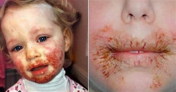 Ця дівчинка важко захворіла через те, що роблять 99% батьків …
