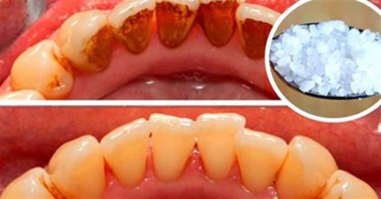 Приголомшливий ефект … Цей засіб відбілить навіть  найжовтіші зуби і видалить бридкий зубний камінь!