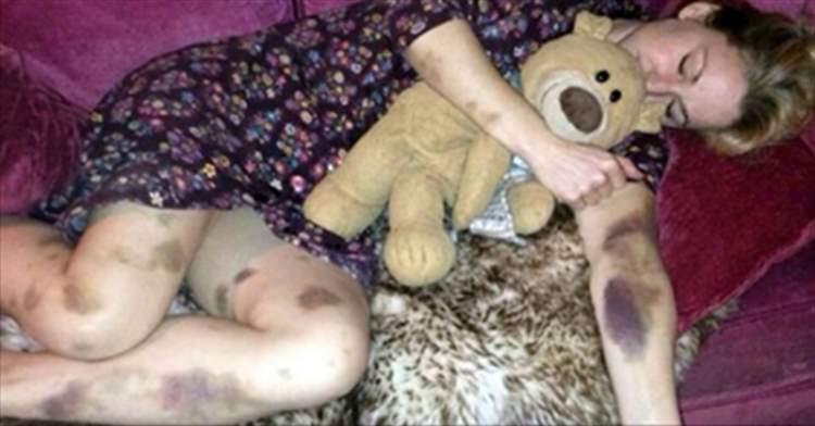 Після вечірки ця жінка прокинулася вся в синцях. Те, що так змінило її тіло, приводить в жах …
