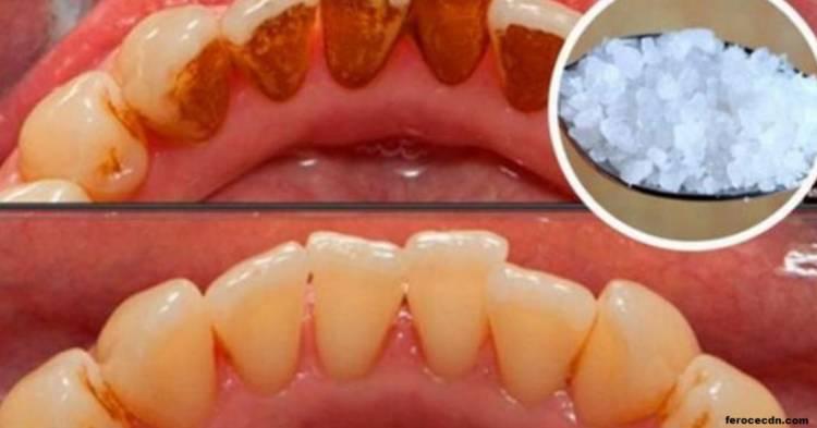 Ось як позбутися зубного каменю без допомоги стоматолога
