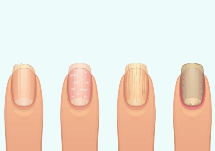 8 змін нігтьової пластини, які вказують на наявність захворювання