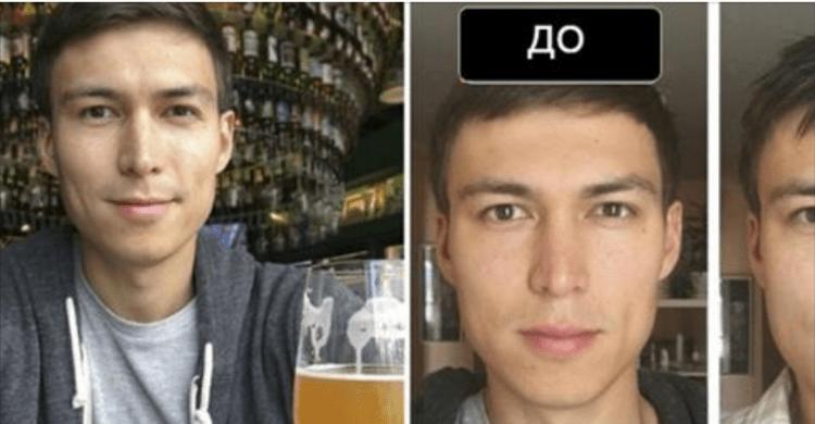 Чоловік випивав літр пива щодня протягом місяця. Зміни в його зовнішності викликають тривогу