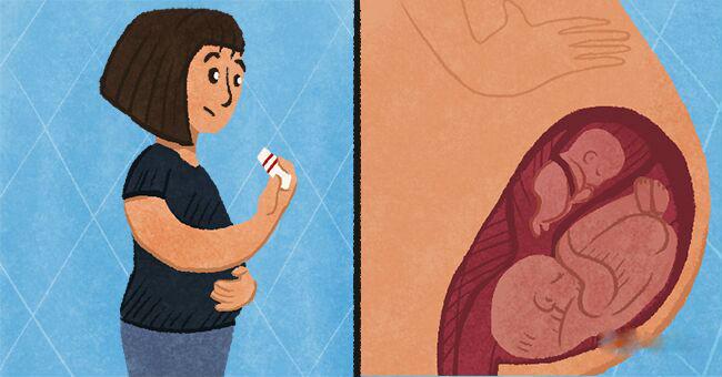 Жінка може зачати дитину під час вагітності — це явище називається суперфетація