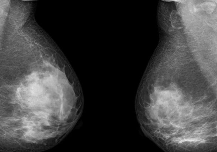 Перші симптоми раку молочної залози