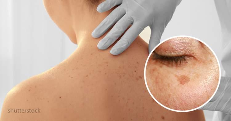 Чому з'являється гіперпігментація шкіри і як від неї позбутися