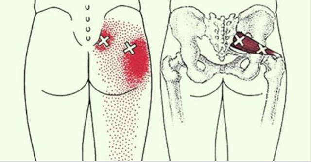 2 трюки, які розблокують сідничний нерв і полегшать біль протягом декількох хвилин