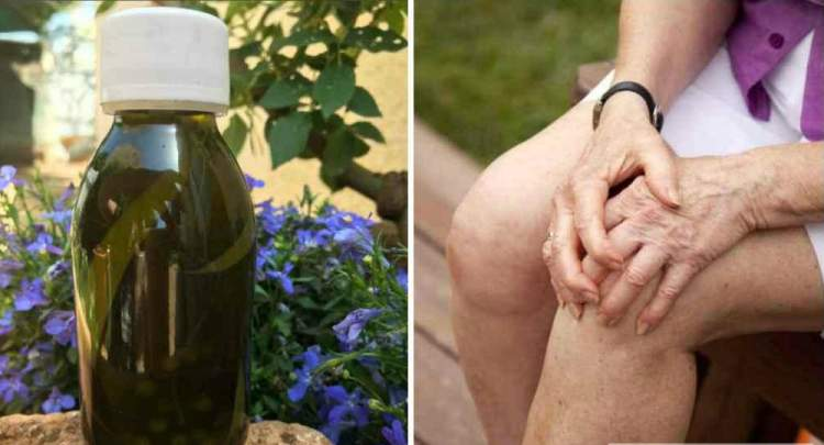 Рецепт дідової настойки, яка назавжди позбавляє від болю в колінах